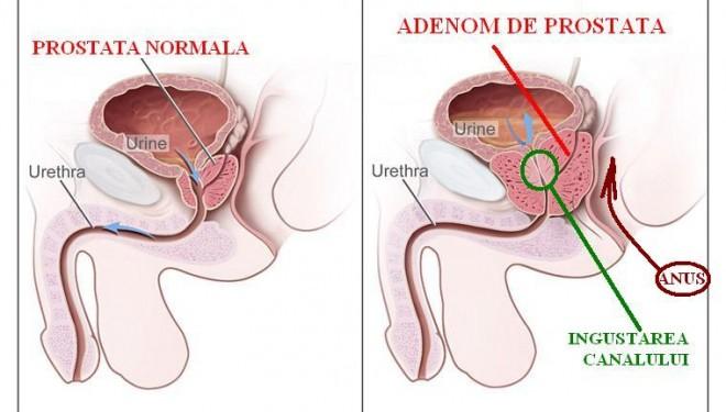 Realizarea in premiera a unei proceduri de terapie minim invaziva  prin embolizare a patologiei prostatice