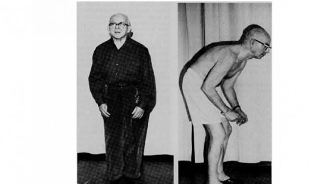Tratamentul recomandat pentru Parkinson poate provoca tulburari de comportament