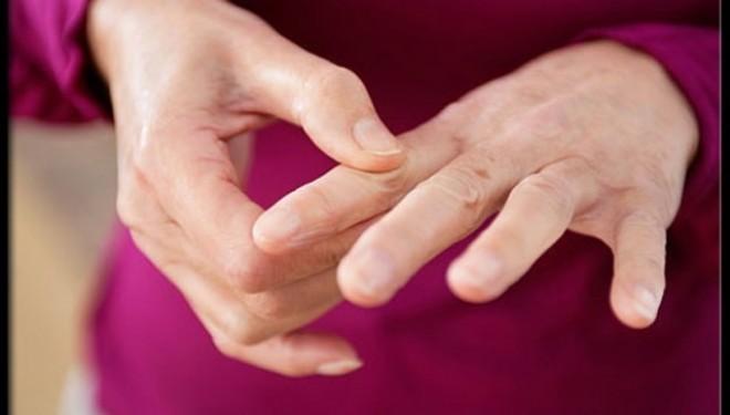 Lupus: expunerea la soare poate duce la agravarea bolii!