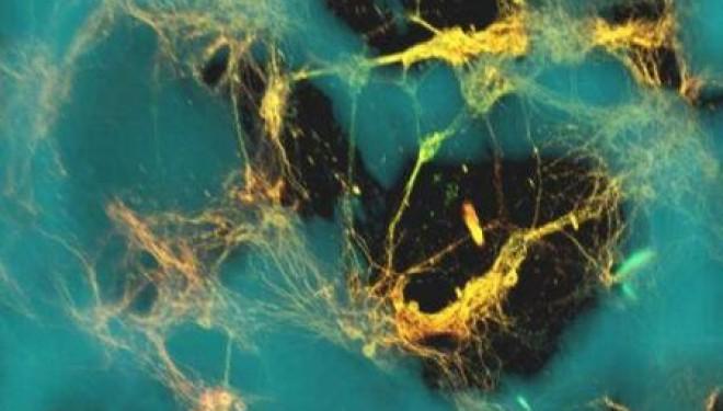 Oamenii de stiinta americani au creat tesut cerebral 3D in laborator