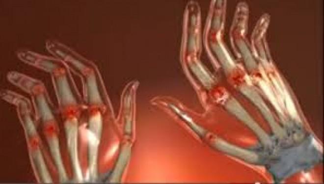 Un nou tratament in artrita psoriazica a fost testat cu succes pe pacienti