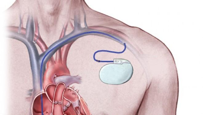 Cercetatorii elvetieni au inventat pacemaker-ul care nu foloseste baterii