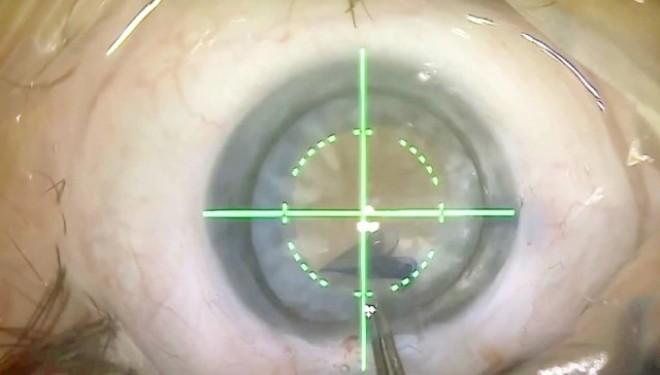 Retinopatia diabetica: o condamnare la orbire? Diagnosticul precoce si tratamentul corect pot salva vederea!