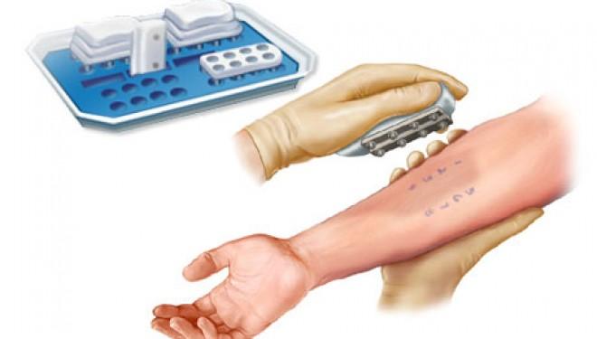 Cu un test de piele se poate depista boala Alzheimer si Parkinson in stadii initiale