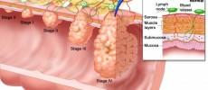 Cancerul colorectal: risc crescut pentru cei a caror parinti sau frati au suferit de aceasta boala !
