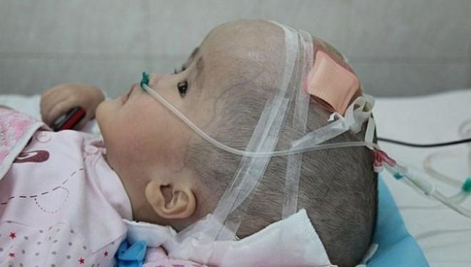 O fetita de 3 ani, diagosticata cu hidrocefalie, a suferit primul transplant de cutie craniana din lume