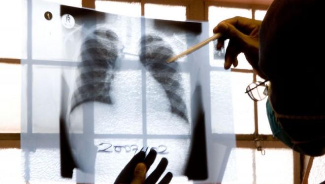OMS recomandă un test de diagnostic rapid pentru tuberculoza multirezistentă