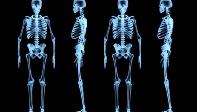 Bioimprimanta 3D capabila sa realizeze tesut osos, muschi si cartilagii