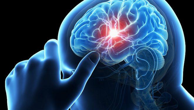 Accidentul vascular cerebral, tot mai frecvent la tineri