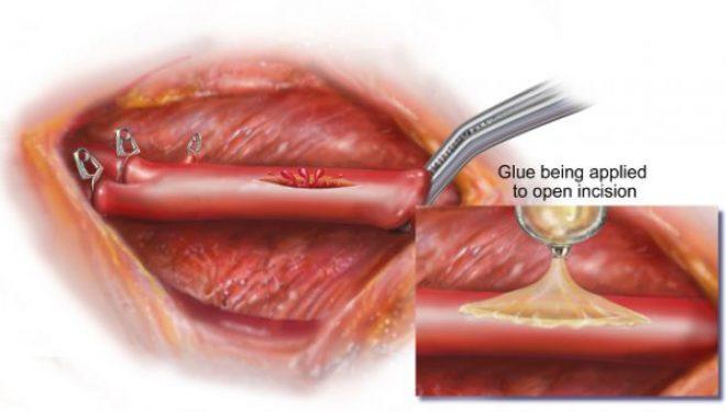 Nu doar că închide o rană într-un minut, dar vorbim despre un adeziv chirurgical.