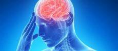 265 de medici au dezbătut la Craiova importanța implicării diferitelor specialități medicale în tratarea pacienților cu AVC (accident vascular cerebral)
