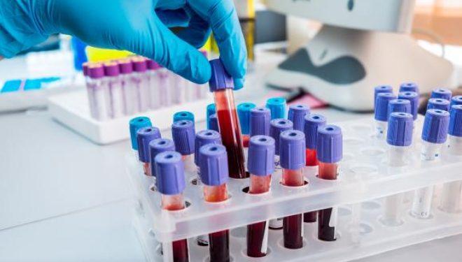 Un test de sânge ar putea detecta riscul apariției de Alzheimer