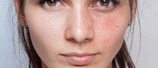 """De ce se """"păteză"""" pielea. Terapii moderne care te ajută să scapi de hiperpigmentare"""