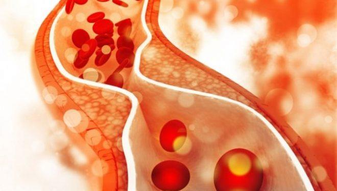 Colesterol şi trigliceride. Cum scădem nivelul acestora dacă este crescut
