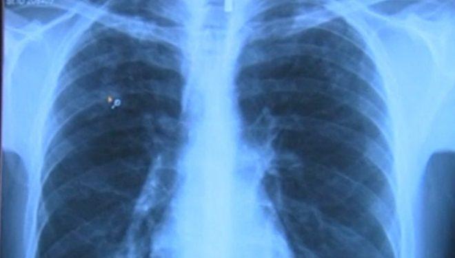 Scandalul radiografiilor din vestiarul spitalului din Slatina. Ce spun medicii acuzați că le-au ascuns