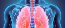 Cancerul pulmonar la cei care nu au fumat niciodată este mai frecvent decât se crede