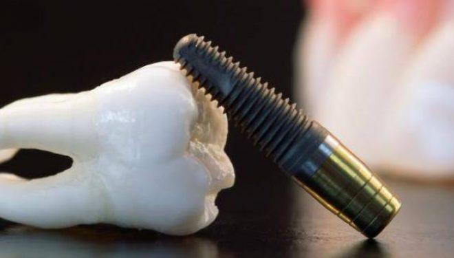Când este cel mai potrivit moment să optezi pentru un implant dentar