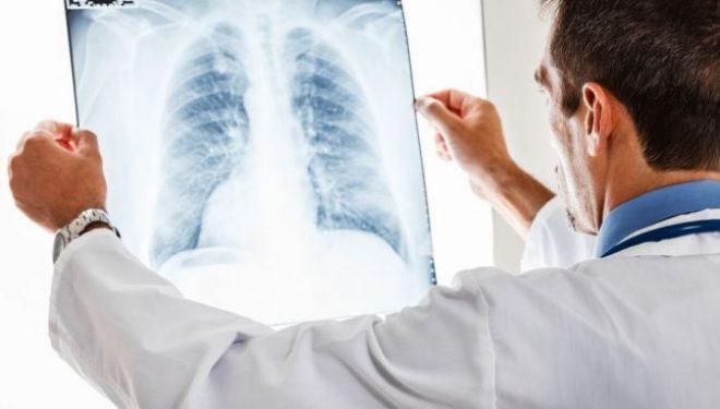 """28 de români mor de cancer la plămâni, în fiecare zi. """"75% din totalul cazurilor de cancer pulmonar sunt diagnosticate în stadiu inoperabil"""""""