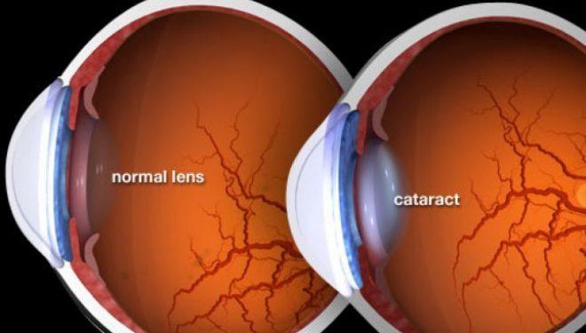 Doi în unu: operaţie de tratare a cataractei şi de corectare a viciilor de refracţie