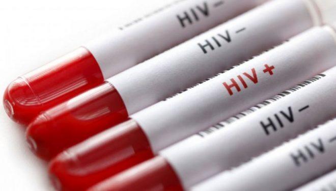 Oamenii de ştiinţă americani au reuşit să elimine virusul HIV la şoareci. Studiu