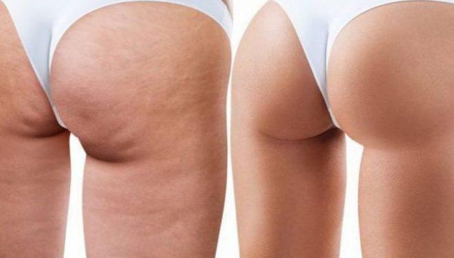 Alimente care combat celulita şi imperfecţiunile pielii