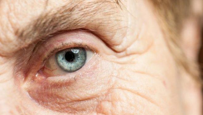 """Prof. dr. Călin Tătaru: """"Operaţia de cataractă a devenit din ce în ce mai simplă. În România, are un prognostic foarte bun"""""""