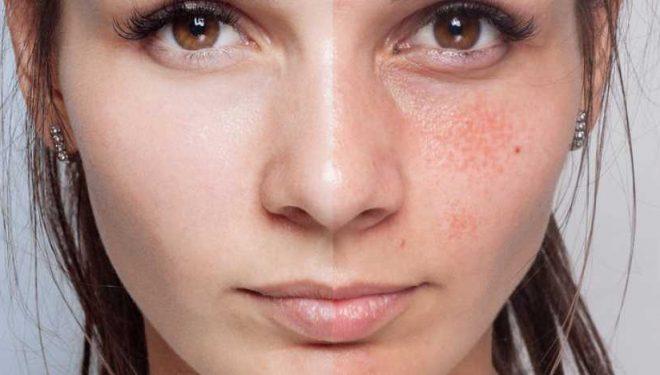Petele de pe piele care se pot transforma în cancer. Tot ce trebuie să ştii despre keratoza actinică