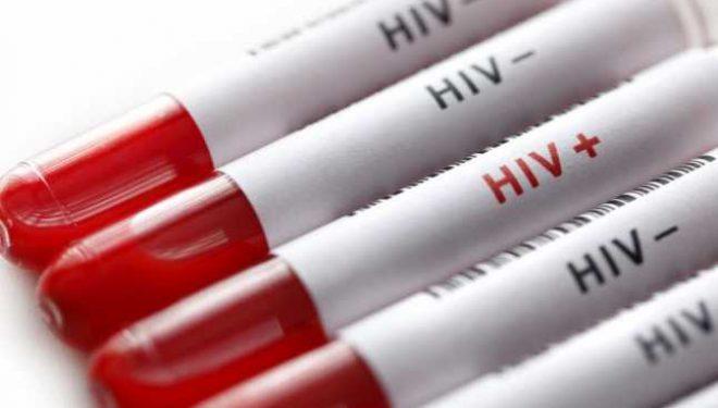 De ce a crescut numărul infecţiilor cu HIV la 30-34 de ani? Aflăm la Adevărul Live