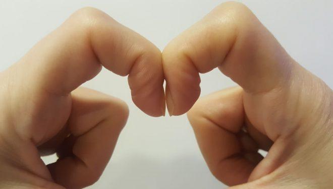 Detaliul banal al unghiilor care poate fi un semn timpuriu al cancerului la plămâni. Testul simplu poate fi făcut acasă