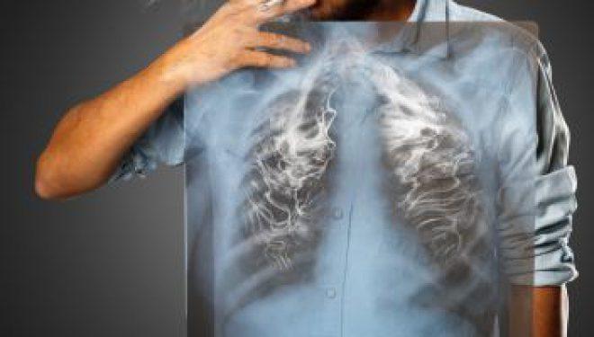 Atenţie la boala fumătorului! Află ce recomandă medicul!