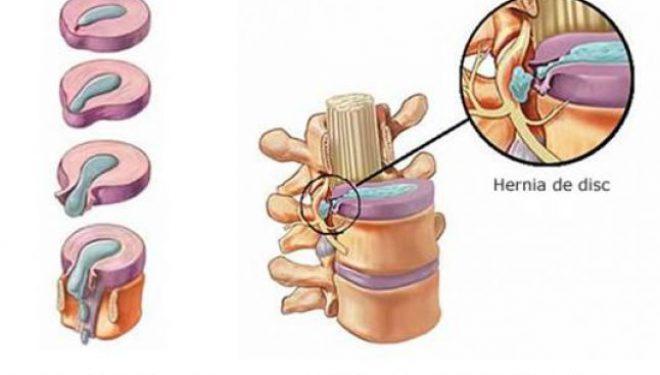 Adevărul Live de la 14.00: De ce apare şi cum poate fi tratată hernia de disc