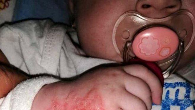 Imagini tulburătoare: O fetiță de 5 luni s-a ales cu răni grave după ce a fost internată în spital pentru răceală