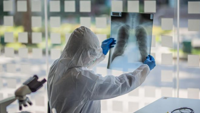 Medici pneumologi: 30% din persoanele vindecate de coronavirus vor avea o perioadă însemnată probleme respiratorii cronice
