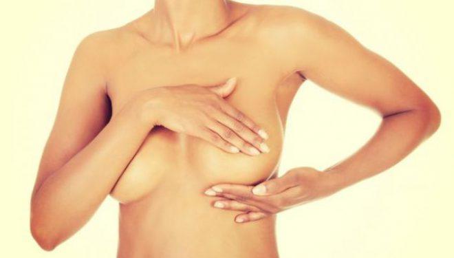 Orice femeie trebuie să îşi palpeze lunar sânii. Iată ce modificări nu sunt normale!