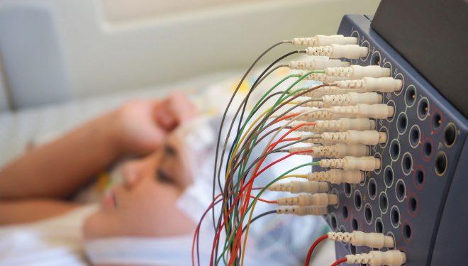 Monitorizarea video-EEG pentru diagnosticul epilepsiei