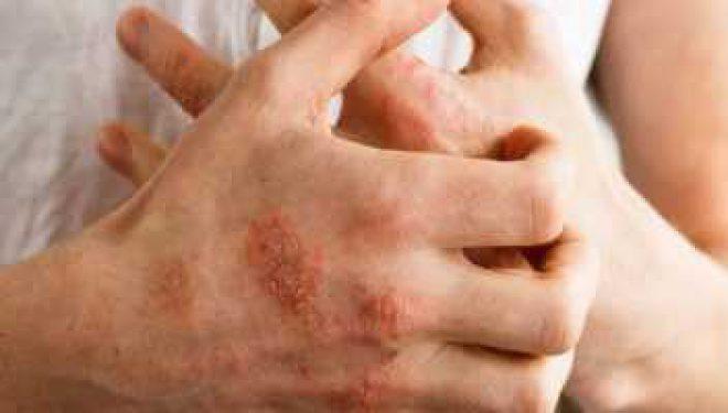 Care sunt pacienţii cu boli dermatoloice care se pot vaccina anti-COVID şi în ce cazuri apar restricţii