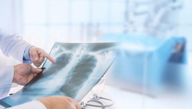 Traseulinfecţiei cu SARS COV-2 la nivel pulmonar. Medicul pneumolog Alina Stanca explică fazele în care organismul este afectat