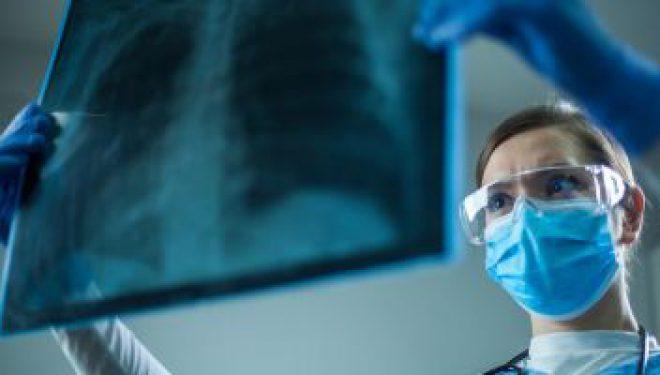 Când este recomandată evaluarea computer tomograf în cazul pacienţilor vindecaţi de COVID-19